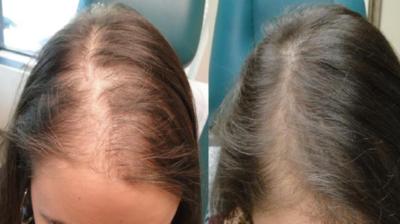 مراكز زراعة الشعر