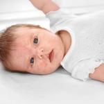 حساسية الجلد عند الاطفال بالصور وعلاجها