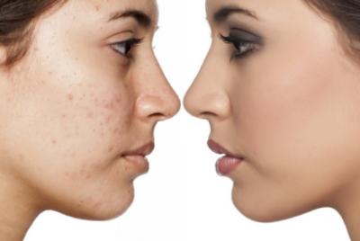 ماسكات لتفتيح البشرة الدهنية وازالة الحبوب من الوجه